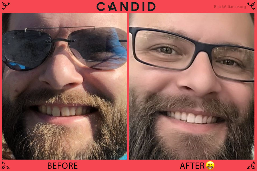 candid before after josh
