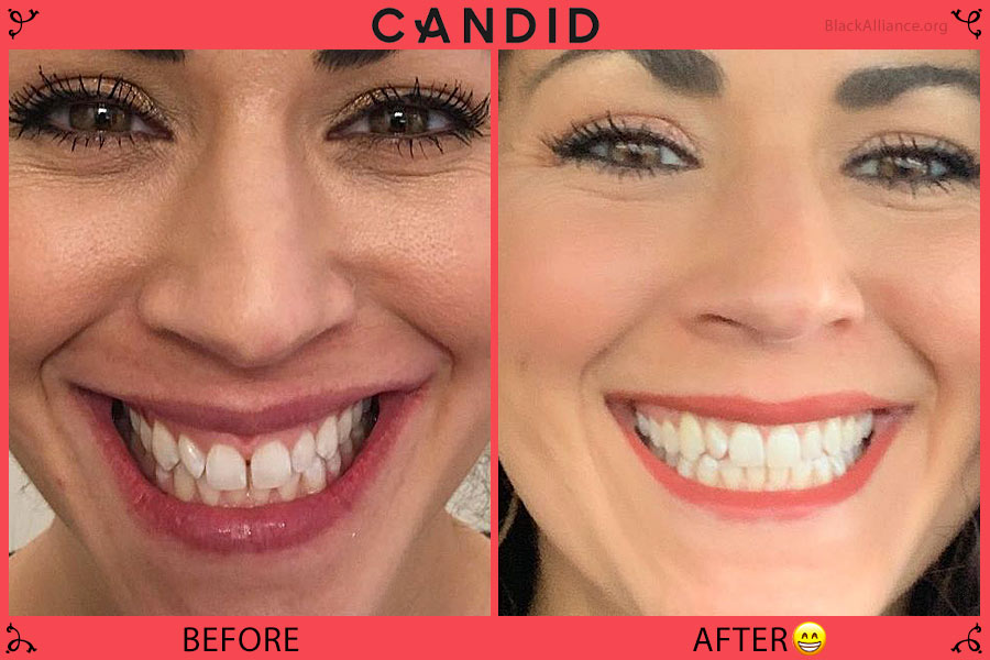 candid teeth before after laura