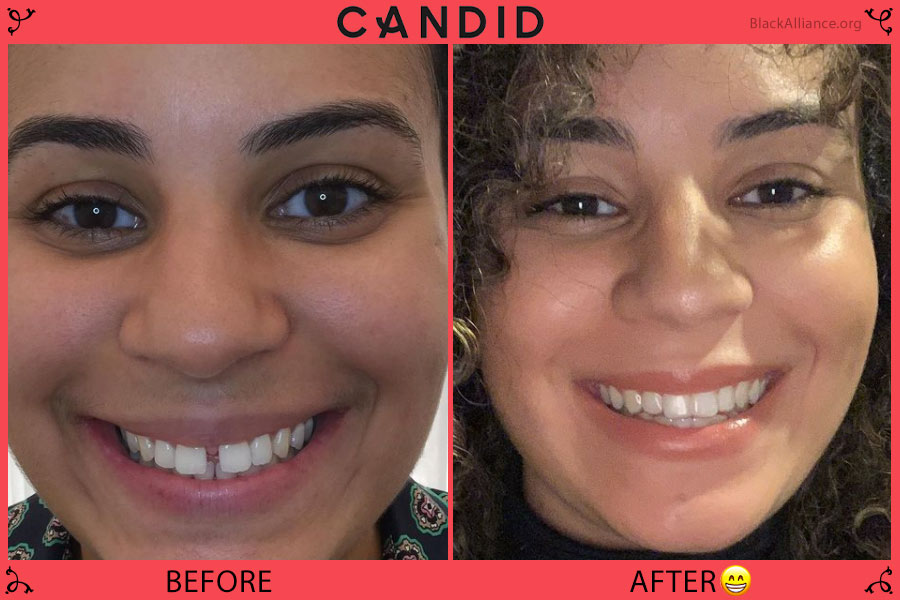 candid co before after sherise