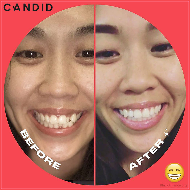 candidco before after photos